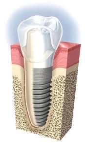 Implantes y regeneración ósea